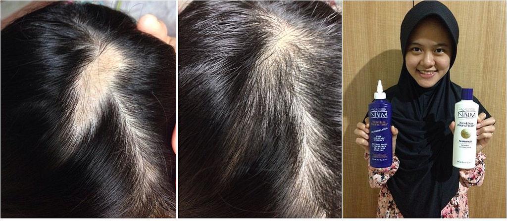 penumbuh rambut ampuh nisim (1)