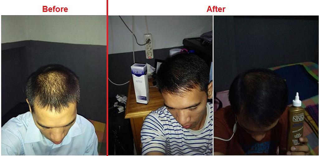 penumbuh rambut ampuh nisim (2)